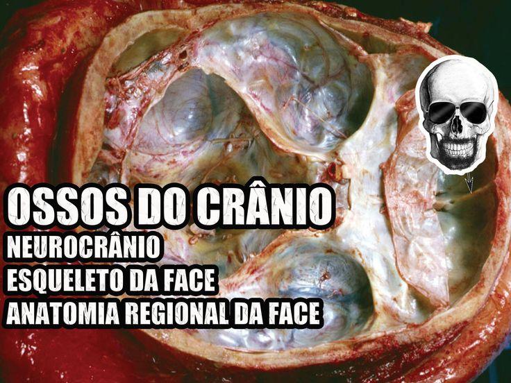 Vídeo Aula 136 - Anatomia Humana - Ossos do Crânio: Neurocrânio e Esquel...
