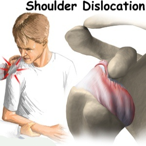 How To Diagnose And Treat Dislocation Of Shoulder