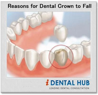 Loose dental crown is a common problem which is encountered by the patients after getting dental crown. Life span of dental crown is 5-15 years but it may fall before.