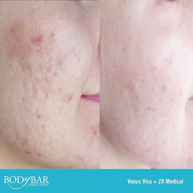 Venus Viva & ZO Medical for the treatment of Acne and Acne Scars.