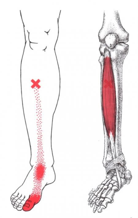 Tibialis Anterior | The Trigger Point & Referred Pain Guide