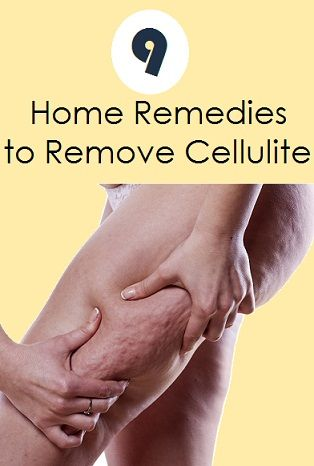 Top 9 Home Remedies to Remove Cellulite..