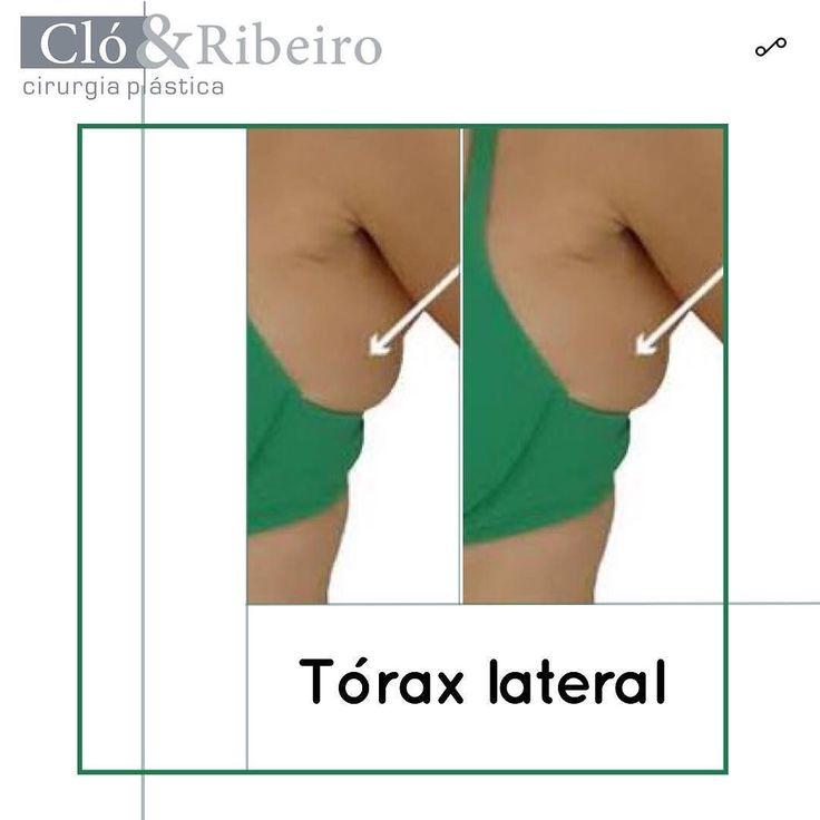 Tórax lateral  Um incômodo quase que universal é a famosa gordurinha na lateral do tórax que escapa pelo sutiã e pelo biquini.  Esta região pode conter tanto gordura como glândula mamária em seus prolongamentos laterais.  A cirurgia de mamoplastia quando indicada acaba melhorando esta região ao estreitar a nova mama e dando uma sensação de emagrecimento no local.  A incisão vertical que vem da base da aréola até o sulco submamário é a grande responsável pelo estreitamento em casos aonde ela…