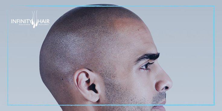 حتي لا يتم خداعك تعرف علي تفاصيل تكلفة زراعة الشعر في تركيا بالريال السعودي زراعة شعر زراعة الشعر زراعة الذقن زراعة ا Behind Ear Tattoo Ear Tattoo Ear