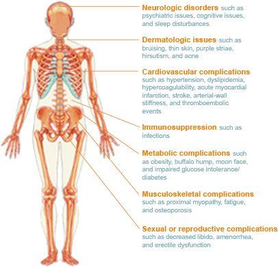 Symptoms of Cushing's disease | Cushings Syndrome/Disease ...