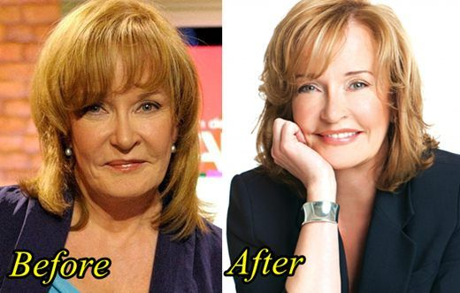 Marilyn Denis Plastic Surgery Before And After Botox