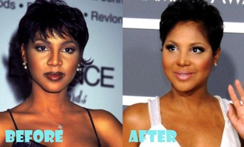 Toni Braxton Plastic Surgery Before And After Toni Braxton Plastic Surgery Before And After