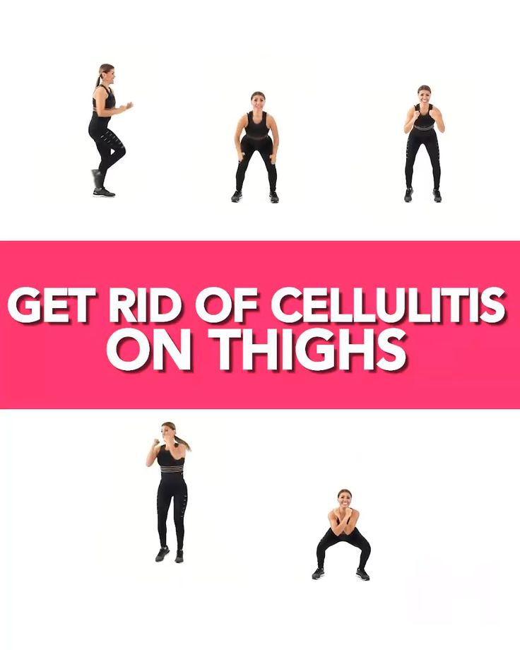 Killer workout to get rid of cellulite on buttocks and thighs