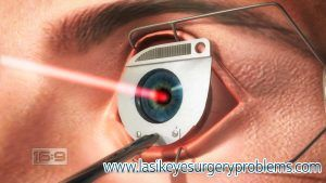 #Lasik #Eye #Surgery #Problems Is Lasik Safe?