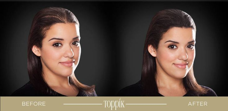 Restore volume and vitality to thin or fine hair with Toppik. From shampoo and conditioner to a thickening treatment and applicator tools, this innovative hair care line offers easy-to-use, at-home alternatives to costly hair restoration treatments.