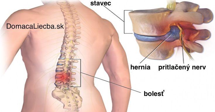 Úspešný na 95%: Prirodzený spôsob, ako dať zbohom bolestiam krížov a chrbta