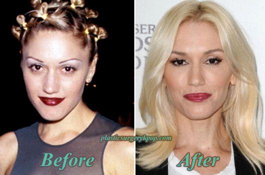 Gwen Stefani - rhinoplasty, blepharoplasty, botox ...