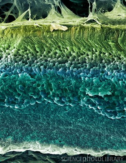 Coloured freeze-fracture scanning electron micrograph (SEM) of the layers of the retina, the light-sensitive tissue that lines the inside of the eye. Rod and cone cells (green cylindrical objects, upper frame) form the outer layer of the retina. The highly-sensitive rods respond to dim light, while the cones detect red, blue and green light.