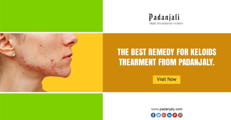 Herbal Treatment for Keloids - Padanjaly http://padanjaly.com/keloids-scars-treatment.htm
