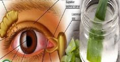 Remédio caseiro de oftalmologista europeu: para fortalecer a visão e evitar glaucoma e catarata | Cura pela Natureza