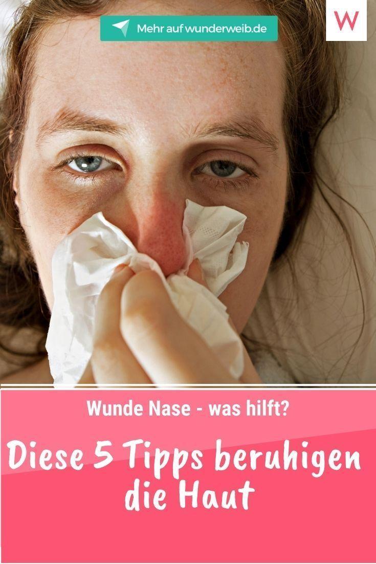 Wunde Nase - was hilft? Diese 5 Tipps beruhigen die Haut