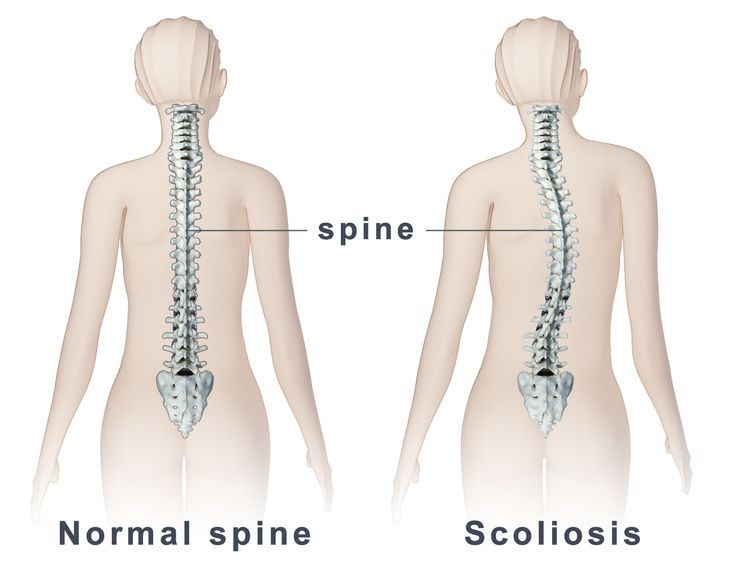 Image drawing of scoliosis spine compared to a normal spine