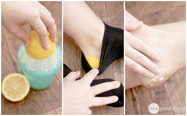 A Simple Solution For Cracked Heels - One Good Thing by JilleePinterestFacebookPinterestFacebookPrintFriendly
