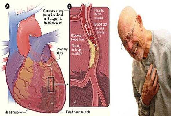 Nyeri disekitar dada? Apa penyebabnya? (Chest pain)