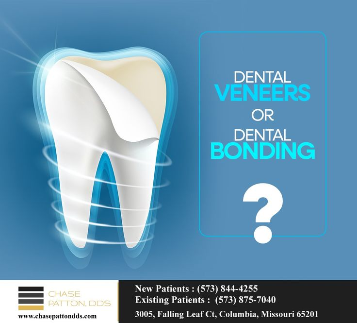 Dental veneers are thin shells which cover the front of