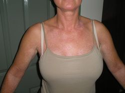 Vitiligo after picture showing suntan from UVb and natural nutrition treatment
