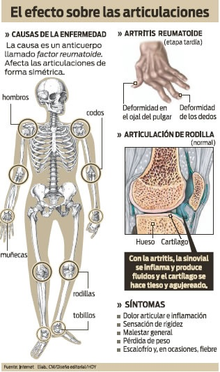 Artritis reumatoide: Efecto sobre las articulaciones