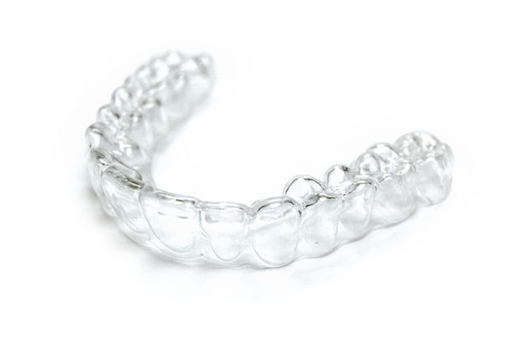 férula de ortodoncia invisible