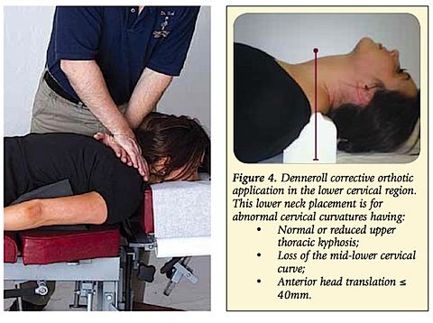 Chiropractic Treatment Of Lordosis Denneroll Combined