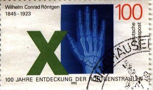 Stamp 150 birthday of Wilhelm Röntgen.jpg