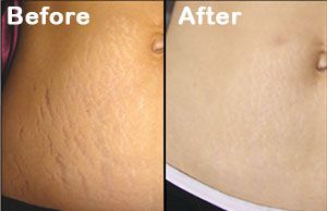 Immediately following your Laser Stretch marks removal virginia treatment, your body will start working to replace aged tissue cells with new ones. The fractional Co2 laser sets the gold standard as the most superior treatment for stretch marks.