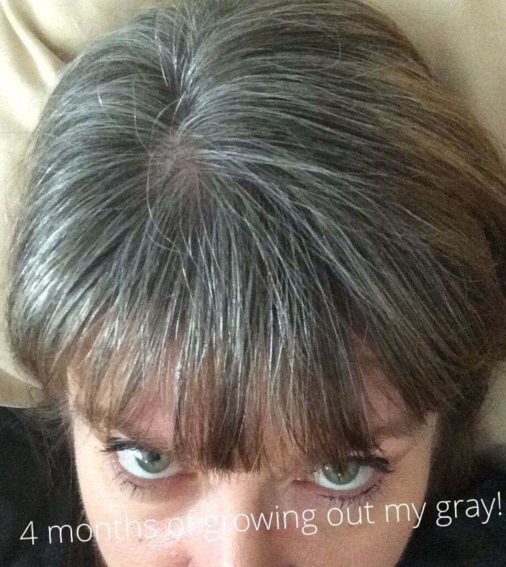 Natural Gray Hair Pinterest