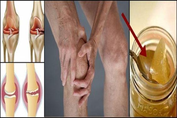 Vyliečte si kolená a zregenerujte si kosti s receptom ktorý udivil lekárov