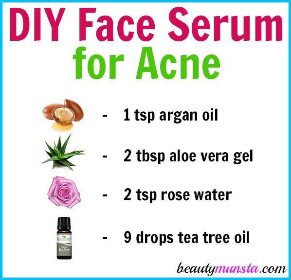 Acne Prone Skin Is Hard To Manage And Is Expensive To Care For Right Wrong You Can Totally Treat Your Acne Naturally A Face Serum Acne Serum Acne Prone Skin