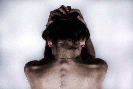Head feels bruised but no sign of injury  https://www.dryscalpgone.com/can-seborrheic-dermatitis-scalp-be-cured/