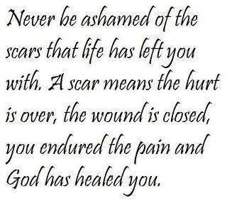 Amen!Remember This, God, Life, Inspiration, Wisdom, Scars, Favorite Quotes, Healing, Living