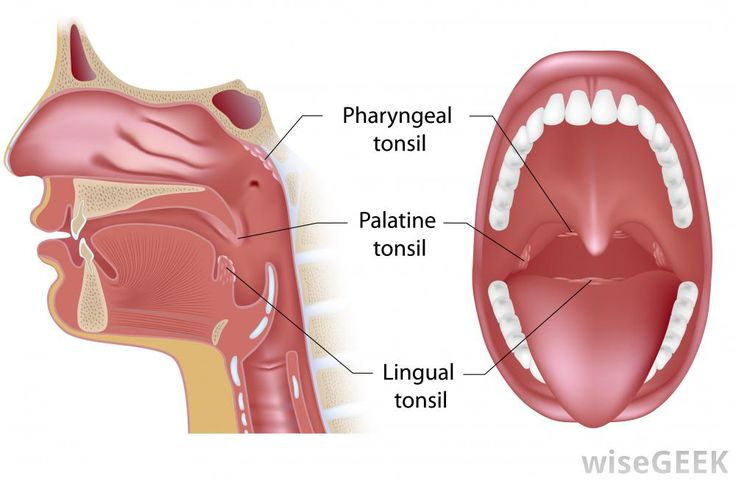 Pharyngeal tonsils (adenoids)  palatine tonsils (tonsillectomy)