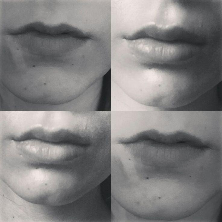 Hyaloron Lips natural Lips Hyaloronsäure