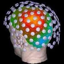 Resultado de imagem para exame eletroencefalograma fotos