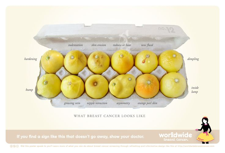 What breast cancer looks and feels like. 65% of participants felt more confident in their ability to recognize breast cancer symptoms after seeing this poster. More info: http://www.worldwidebreastcancer.com/what-does-breast-cancer-look-like/
