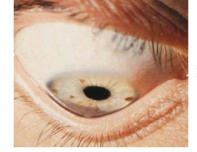 La figura muestra un queratocono y se hace evidente cuando se le pide al paciente que mire hacia abajo. Se le llama signo de Munson.