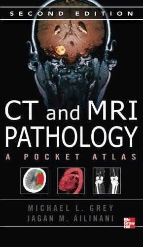 CT & MRI Pathology: A Pocket Atlas, Second Edition (RadTech)