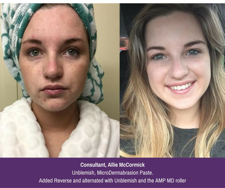 """Allie McCormick says she has always dealt with acne but could never find anything to clear it up. She also said that she had freckles and sun spots from both sun exposure and tanning beds. """"I became a consultant in March and started off with the Unblemish regimen and Micro-Dermabrasion Paste,"""" she said. """"After 3 months I added in Reverse and would switch off between the two & I started to use the AMP MD Roller as well. I've always dreaded doing my own """"before and after"""" since my skin was so…"""