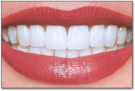 pefect teeth | 28x20 Perfect Teeth Poster by SmartPractice