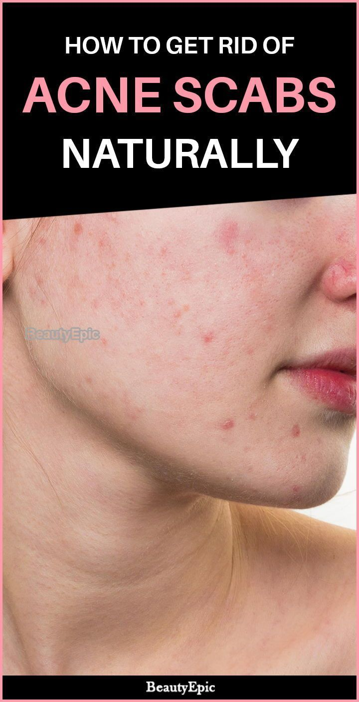How to Get Rid of Acne Scabs Naturally | Get Rid Of Acne in