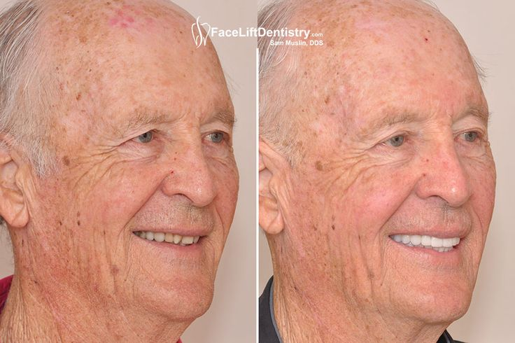 Consult our dental expert Dr. Sam Muslin at 1908 Santa Monica Blvd, Ste#1, Santa Monica, CA 90404 for face lifting treatments.To know more about it explore the given link or call us on :(310) 829-6796  #UnderBiteCorrection #withoutsurgery