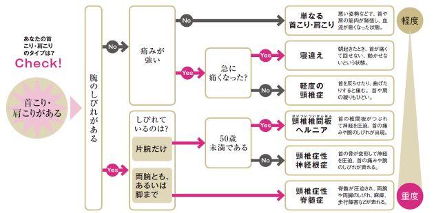腕のしびれは危険信号 危ない「首こり」対策  :日本経済新聞