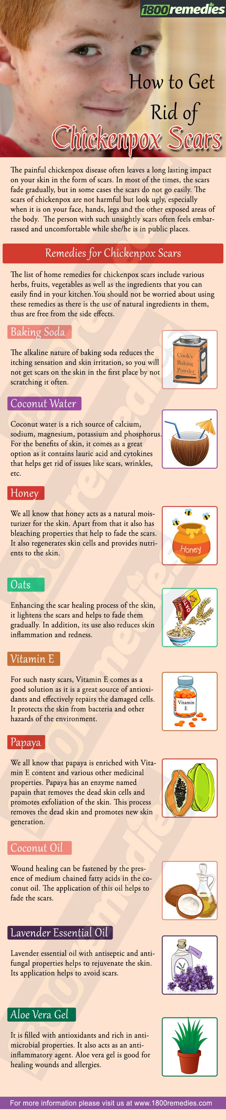 The list of home remedies for chickenpox scars include various herbs, fruits, vegetables as well as the ingredients that you can easily find in your kitchen.