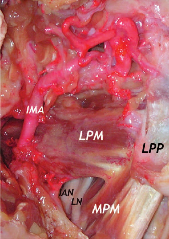 Endoscopic anatomy of the infratemporal fossa. [significant crossroads for neurovascular structures that traverse to and from the brain and brain stem]