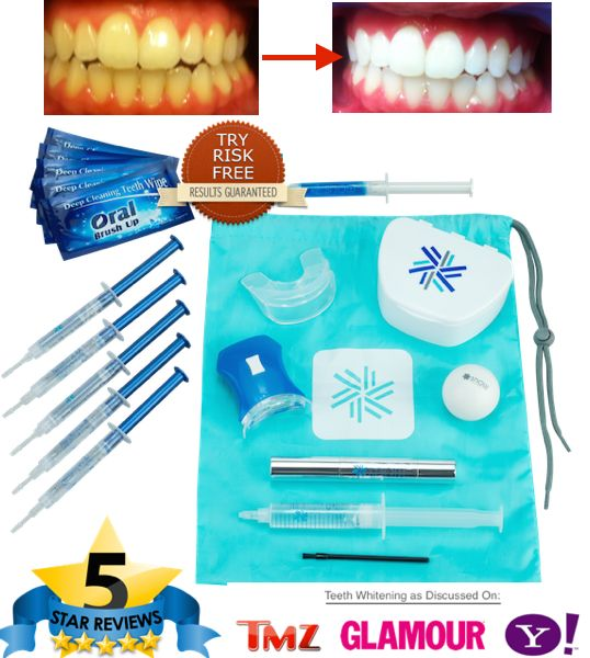 17 Best Ideas About Teeth Whitening System On Pinterest