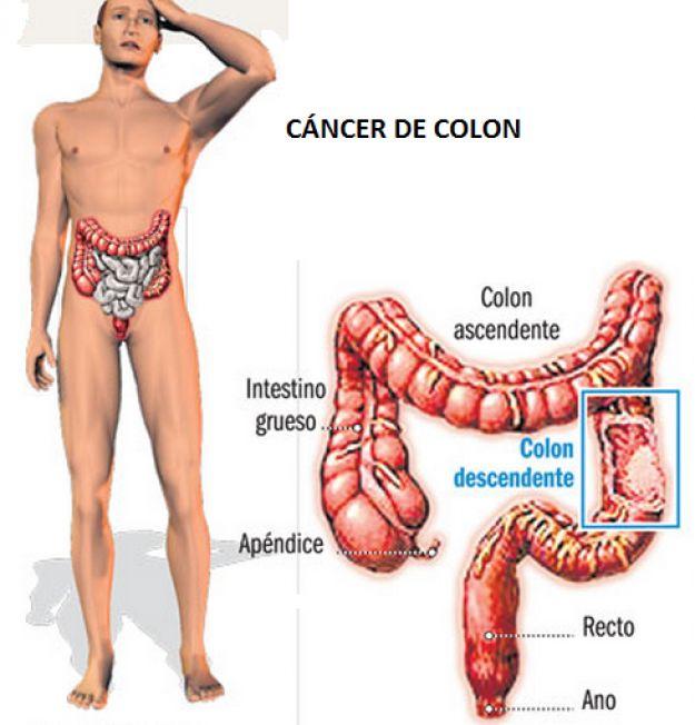 Cáncer de colon, causas, síntomas, prevencion 9